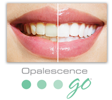 Professional Teeth Whitening Phoenix AZ
