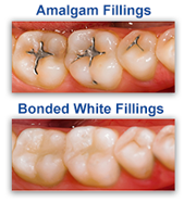White Dental Fillings Dentist Phoenix AZ
