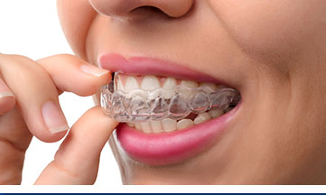 Invisalign Clear Dental Braces Dentist Phoenix AZ
