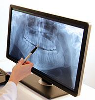 Digital Dental Xrays Phoenix